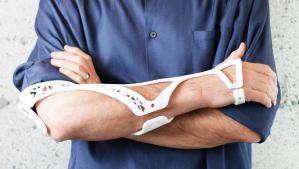 3049149-poster-p-2-healing-injuries-could-be-better-thanks-to-this-3-d-printed-cast