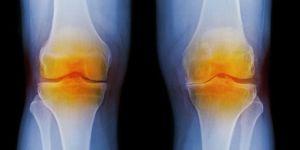 landscape-1446728472-g-osteoarthritis-103772368