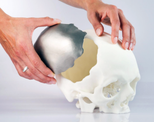 3D-printed-cranial-implant-approved-by-EU-Image-Courtesy-of-OPM-624x498