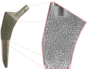 ortho-implant
